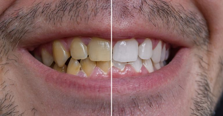 What Does Full Mouth Reconstruction Includes