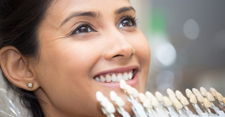What Can Porcelain Veneers Do For Your Smile | Porcelain Veneers In Dubai