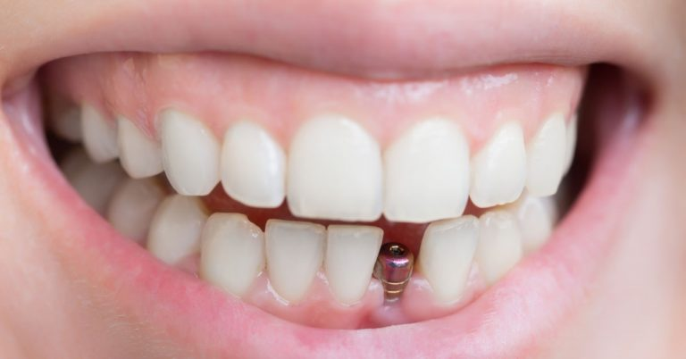 Lost a Tooth Here's How Single Tooth Implant Can Benefit You
