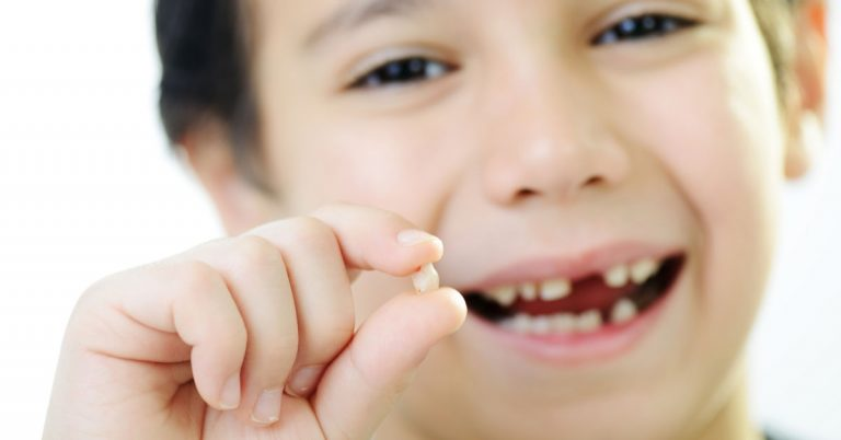 Solutions to Look for If Your Child Has Missing Permanent Tooth