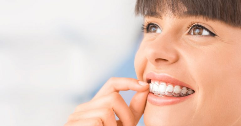 How to Care For Your Smile after Invisalign Procedure   Orthodontics In Dubai