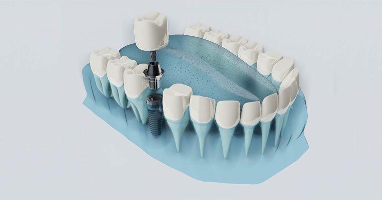 More Information on Immediately-loaded Dental Implants | Dental Implants in Dubai