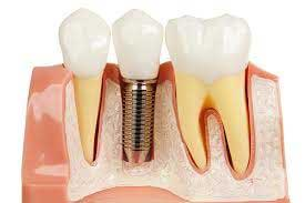 Dental Implant to restore your beautiful smile
