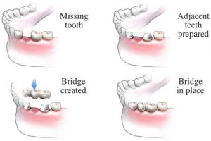 Missing tooth treatment with dental bridges