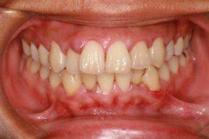 Gum inflammation caused due to Gingivitis