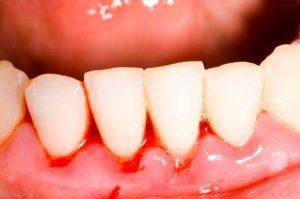 Gum bleeding during Pregnancy period