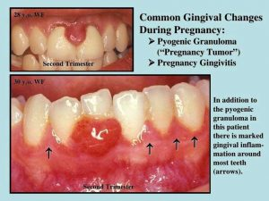Common gingival changes during pregnancy