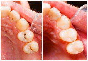 Oral health preventive care