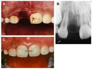 Reimplanting avulsed tooth