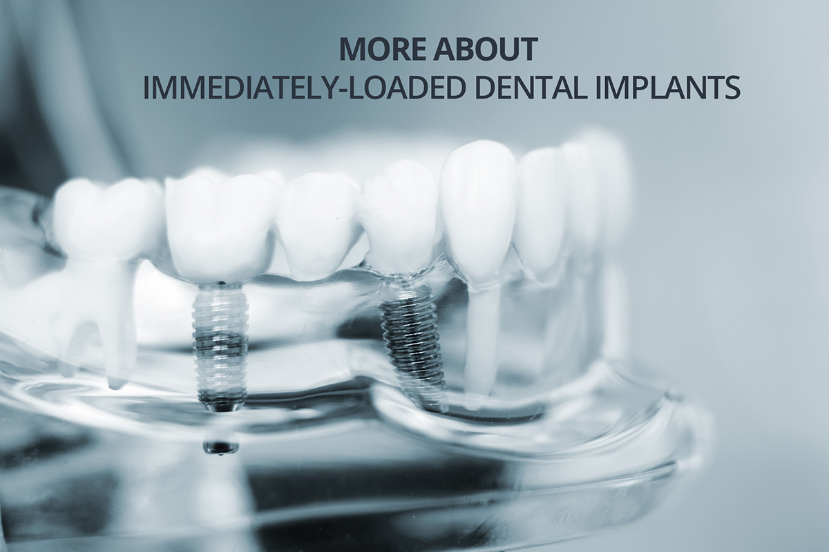 More about Immediately Loaded Dental Implants