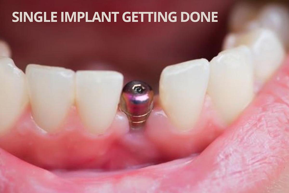 More Information on Immediately-loaded Dental Implants