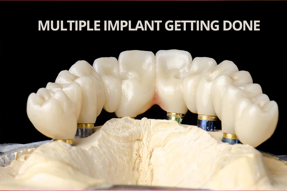 Immediately- loaded Multiple Dental Implants