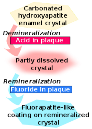 Fluoride safeguards the teeth from tooth decay