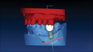Computer guided implant