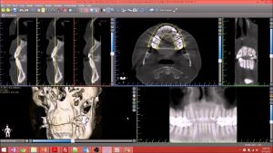 Implant placement Study using CBCT