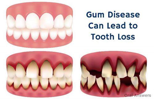 Teeth loss caused by gum diseases