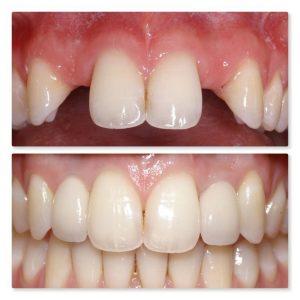 Teeth structure before and after fixing dental implants