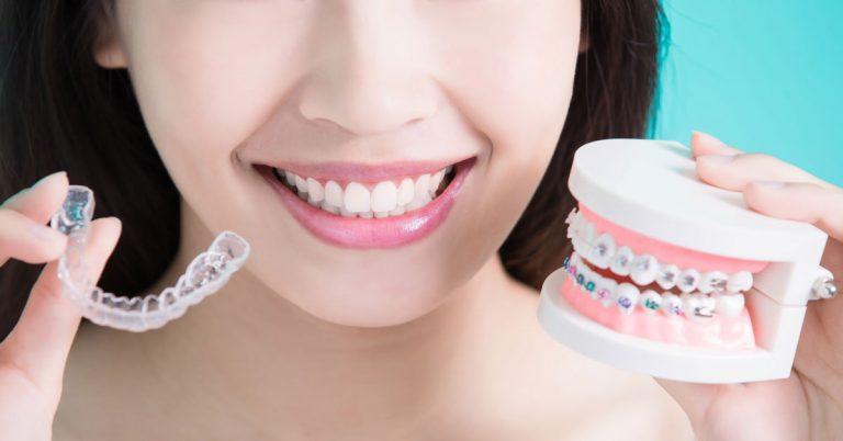 Clear Aligners versus Traditional Braces | Orthodontics In Dubai