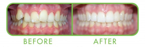 Teeth alignment before and after invisalign