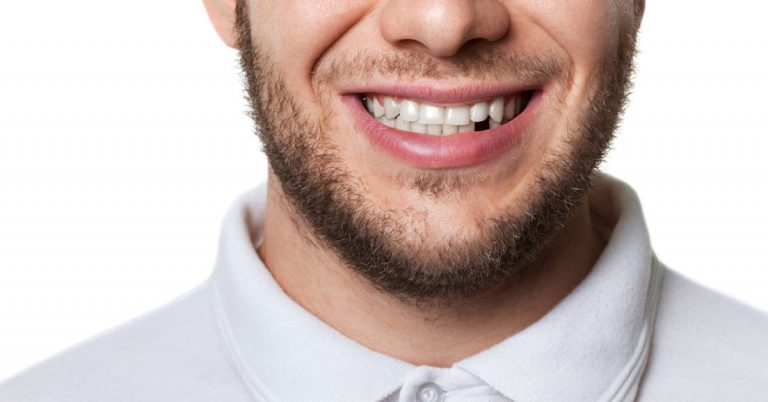 Immediate loaded implants – a Royal replacement for your missing tooth | Dental Implants in Dubai