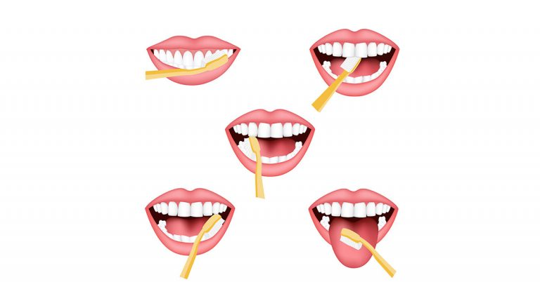 Pointers to brushing your teeth correctly   Dental clinic in Dubai