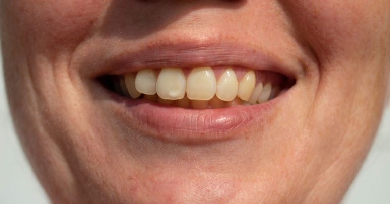 Preventing and Treating White Spots on your Teeth