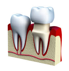 Crown to cap Root canal treated tooth