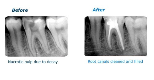 Root of a tooth before and after RCT