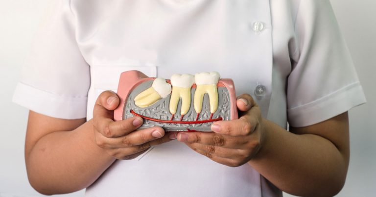 Why are wisdom teeth present and should we remove all of them | Surgical Wisdom Tooth Extraction