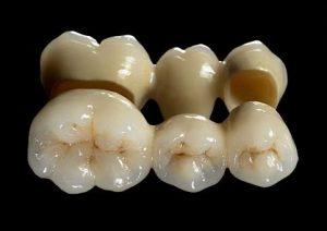 Dental crowns to cap teeth