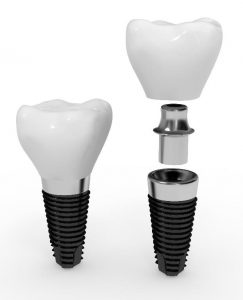 Immediate loaded dental implant
