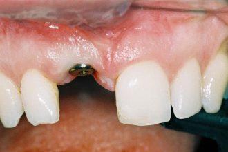 Fixing immediate loaded implant