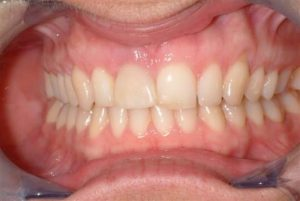 Teeth after fixing dental implant