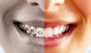 Clear Aligners versus Traditional Braces