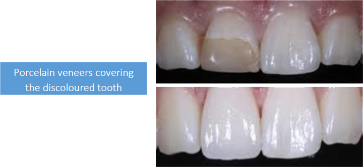 Porcelain veneers covering the discoloured tooth