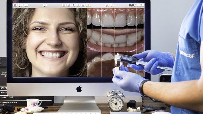 Digital smile design for Dental aesthetics