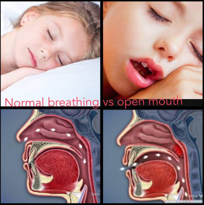 Mouth breathing effect on face