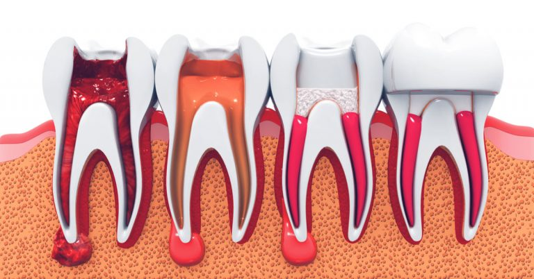 Root canal a cause for Oral cancer – Vanquish the fear | Endodontics In Dubai