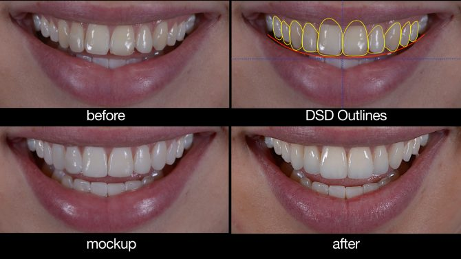 Smile before and after DSD