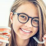 All about Braces