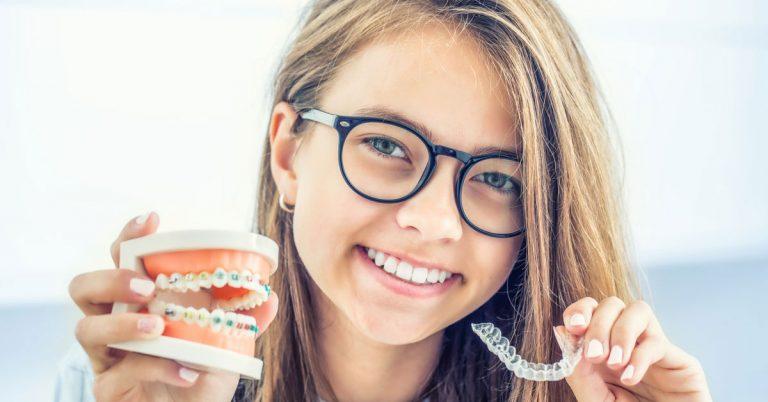 About Dental Braces | Orthodontics In Dubai