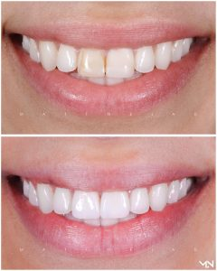 Porcelain veneer to hide the stained tooth