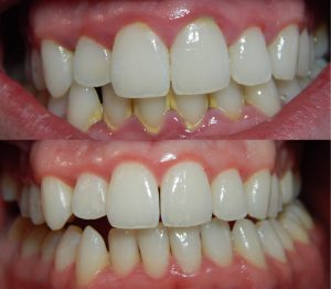 Teeth appearance before and after Gingivitis