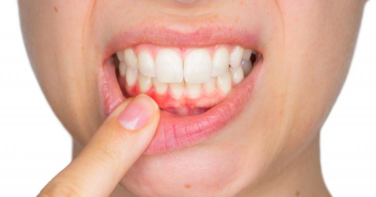 Gum Disease and its management | Dental Hygiene
