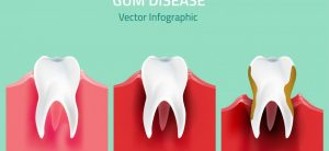 Impact of Gum disease on a tooth