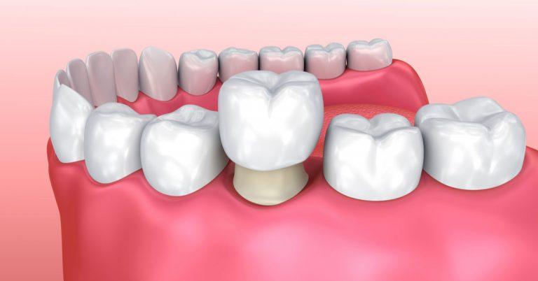 CEREC dental restorations – their advantages over conventional crowns