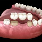 Crowns and Bridges – royal replacement of your missing teeth