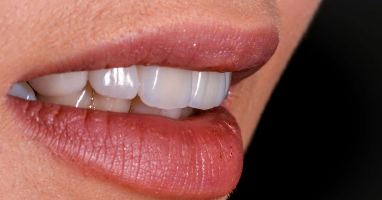 Zirconia Crowns – their indications and uses