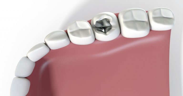 A walk through on tooth fillings