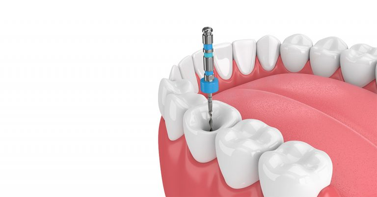 Some frequently asked questions about Root Canal Treatment